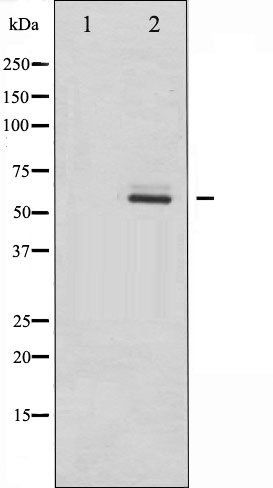 Western blot analysis of HeLa whole cell lysates using Estrogen Receptor-beta antibody.The lane on the left is blocked with the antigen-specific peptide.