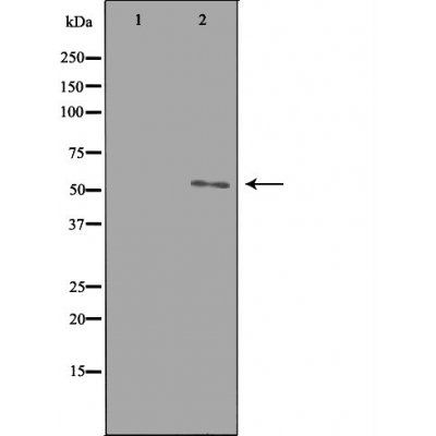 Western blot analysis of HepG2 cells using ETBR2 antibody