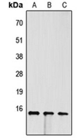 Western blot analysis of Jurkat (Lane1), H9C2 (Lane2), PC12 (Lane3) whole cell using FABP4 antibody