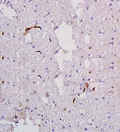 Immunohistochemical analysis of formalin fixed and paraffin embedded rat brain tissue using Factor VIII