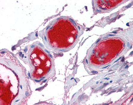 Immunohistochemical staining of paraffin embedded human liver tissue using Factor X antibody (primary antibody at 1:200)