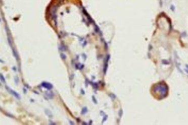 Immunohistochemical analysis of formalin-fixed paraffin embedded human placenta tissue using Factor XIIII antibody (dilution at 1:200)