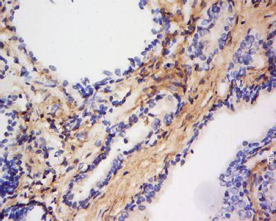 Immunohistochemical staining of Human prostate tissue using FAF1 antibody.
