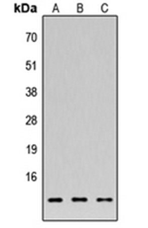 Western blot analysis of HEK293T (Lane1), NS-1 (Lane2), H9C2 (Lane3) whole cell using FAM215A antibody