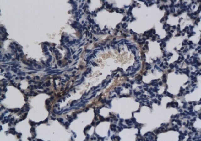 Immunohistochemical staining of paraffin embedded rat lung tissue using FGF8 antibody