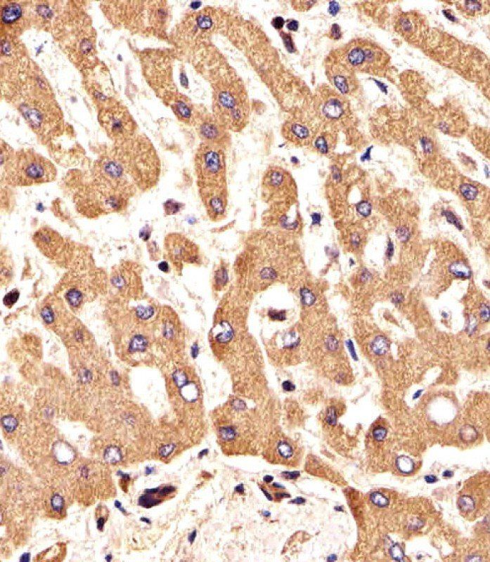Immunohistochemical analysis of formalin-fixed and paraffin-embedded human liver section using FGFR2 antibody