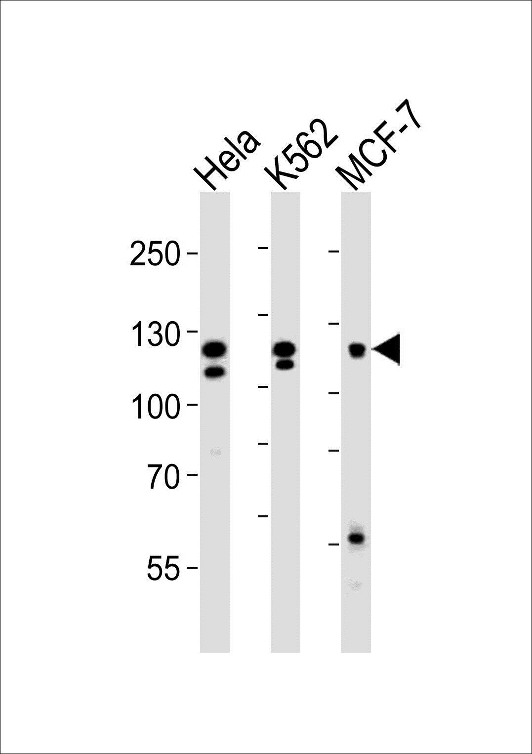 WB analysis of Hela K562 MCF-7 cell line (from left to right) using FGFR2 antibody