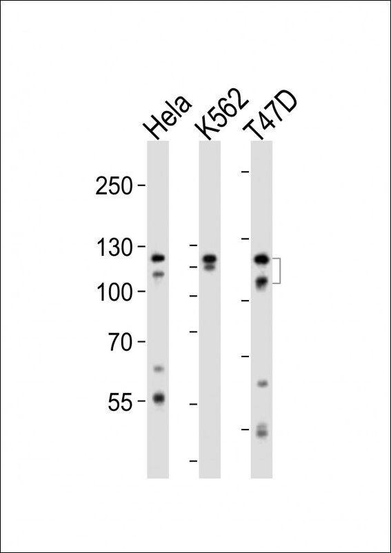 WB analysis of Hela K562 T47D cell line (from left to right) using FGFR2 antibody