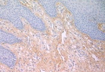 Immunohistochemical staining of human skin using Fibronectin antibody