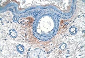 Immunohistochemical staining of rat skin using Fibronectin antibody