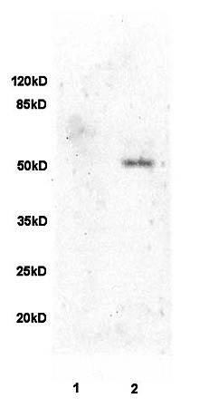 Western blot analysis of rat brain lysates(Lane1),human colon carcinoma lysates(Lane2) using Fibulin 5 antibody