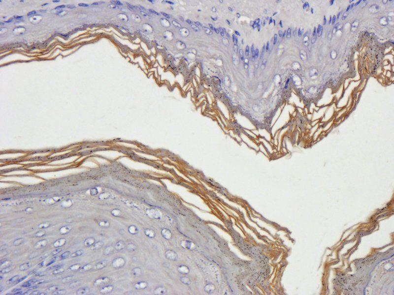 IHC-P staining of rat stomach tissue using Filaggrin antibody (2.5 ug/ml)