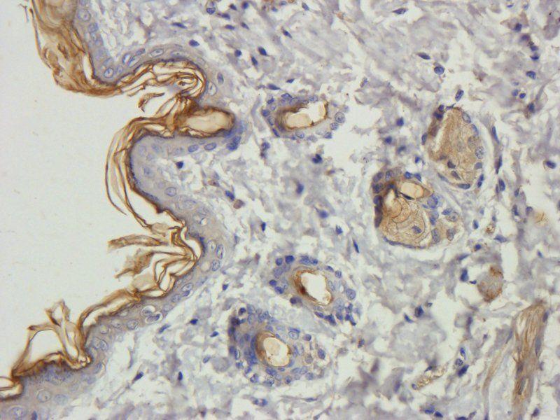 Immunohistochemical staining of paraffin embedded rat skin tissue using Filaggrin antibody (2.5 ug/ml)