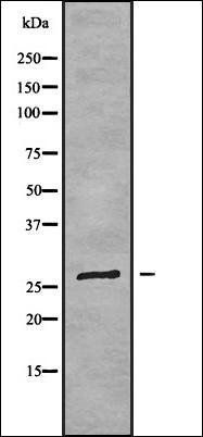 Western blot analysis of RAW264.7 whole cell lysates using FOLR3 antibody