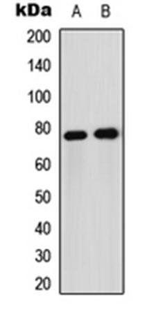 Western blot analysis of Jurkat (Lane1), HeLa (Lane2) whole cell using FOXO1 antibody