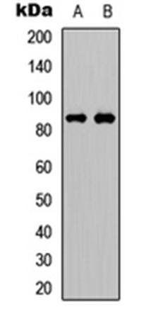 Western blot analysis of Jurkat (Lane1), Huvec (Lane2) whole cell using FRS2 (phospho-Y436) antibody