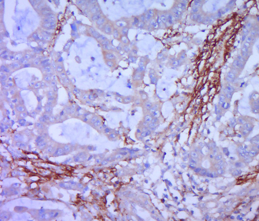 Immunohistochemical staining of human cervical cancer using Syndecan 1 antibody.