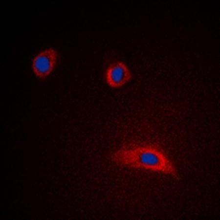 Immunofluorescense analysis of HeLa cells lysates using GAP43 antibody