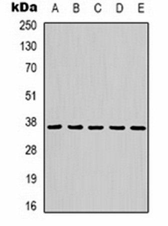 Western blot analysis of Hela (Lane 1), mouse brain (Lane 2), rat brain (Lane 3), rabbit muscle (Lane 4), sheep muscle (Lane 5) whole cell lysates using GAPDH antibody