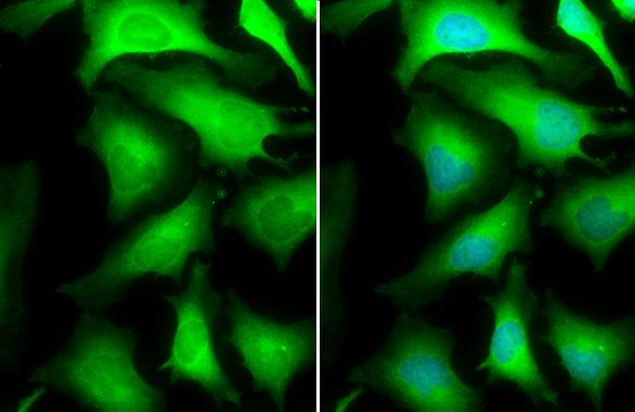 Immunofluorescence analysis of HeLa cells using GAPDH antibody