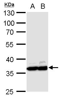 Western blot analysis of PC-12 whole cell lysate(Lane 1), Rat2 whole cell lysate(Lane 2) using GAPDH antibody