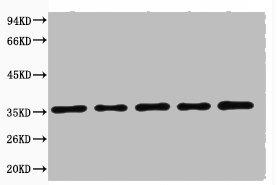 Western blot analysis of 293T (Lane 1), Rat brain (Lane 2), NIH 3T3 (Lane 3), Sheep Muscle (Lane 4), Rabbit testis (Lane 5) using GAPDH antibody