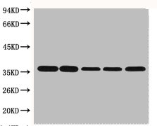 Western blot analysis of Hela (1), Rat brain (2), Rabbit Muscle (3), Sheep Muscle (4), and Mouse brain (5) using GAPDH antibody