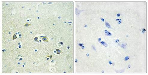 Immunohistochemical analysis of formalin-fixed and paraffin-embedded human brain tissue using GAS6 antibody