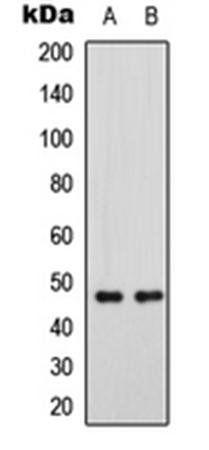Western blot analysis of SHSY5Y (Lane1), mouse brain (Lane2) whole cell using GATA3 (phospho-S308) antibody