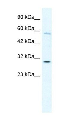 Western blot analysis of K562 cell lysate tissue using GATAD1 antibody