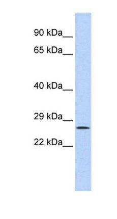 Western blot analysis of HepG2 cell lysate tissue using GATAD1 antibody