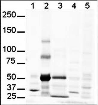 Western blot analysis of human lung lysate believed to be Gli-3. Lanes contain 20 ug of whole cell lysates from 1 - human brain, 2 - human lung, 3 - human spleen, 4 - mouse brain and 5 - mouse lung using GLI3 antibody