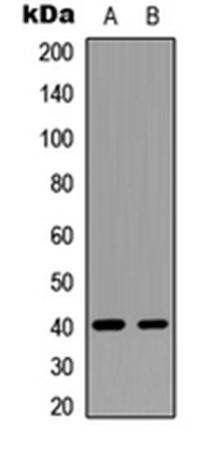 Western blot analysis of U87MG (Lane1), mouse brain (Lane2) whole cell using GNAT1 antibody