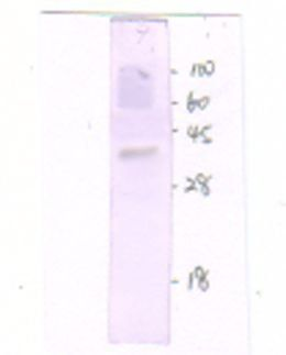 Western Blot of mouse liver lysate with GnRH Receptor antibody (1:300 dilution)