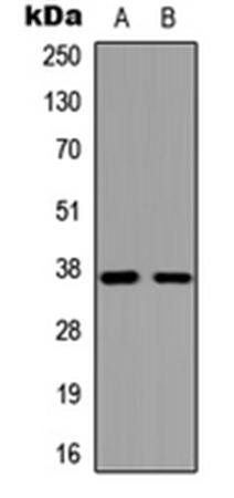 Western blot analysis of HeLa (Lane1), COLO205 (Lane2) whole cell using GPR119 antibody