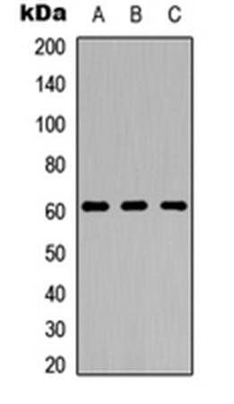 Western blot analysis of HeLa (Lane1), Raw264.7 (Lane2), PC12 (Lane3) whole cell using GPR123 antibody