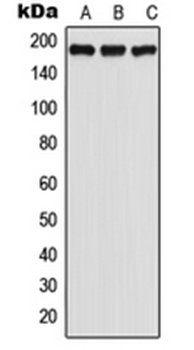 Western blot analysis of HeLa (Lane 1), SP2/0 (Lane 2), PC12 (Lane 3) whole cell lysates using GPR125 antibody