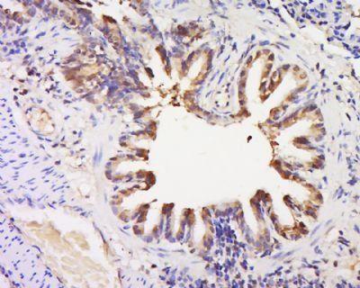 Immunohistochemical staining of Rat lung tissue using GPR92 antibody.