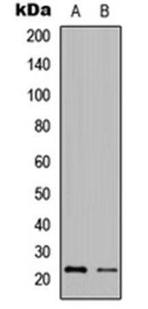 Western blot analysis of Jurkat (Lane1), HeLa (Lane2) whole cell using Granzyme H antibody