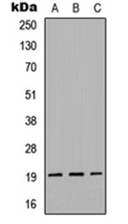 Western blot analysis of HEK293T (Lane1), Raw264.7 (Lane2), H9C2 (Lane3) whole cell using Gremlin 2 antibody