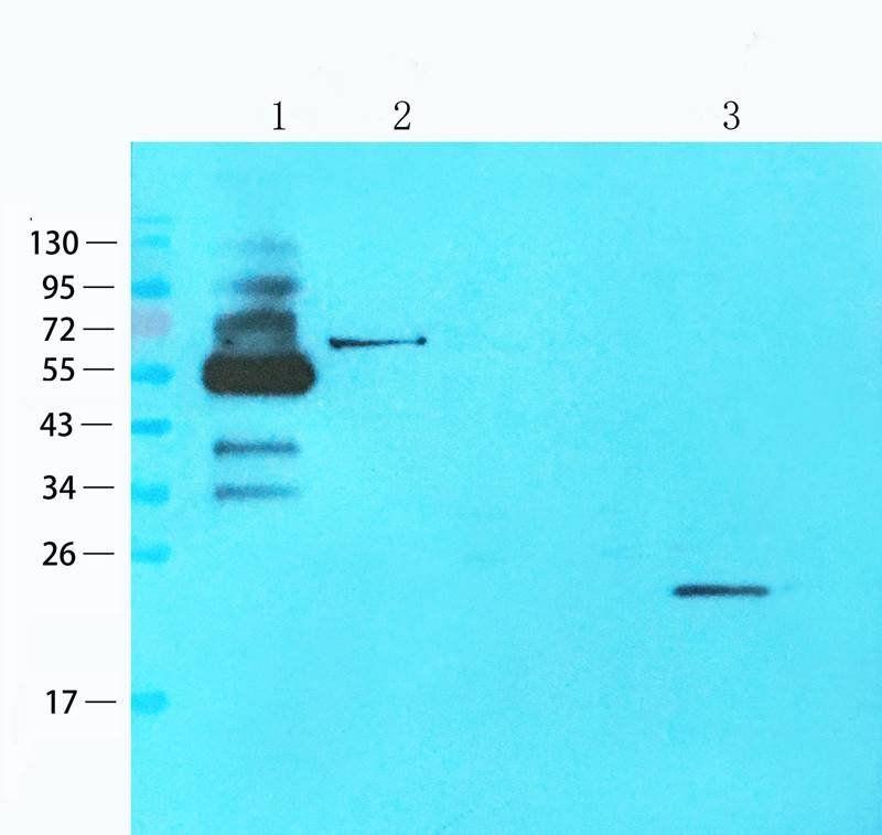 Western blot analysis of human lung cancer (lane 1), mouse testis (lane 2), mouse spinal cord (lane 3) using Gremlin 1 antibody (1 ug/ml)