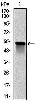 Western blot analysis of human GSTM1 (AA: 23-181) recombinant protein using GSTM1 antibody