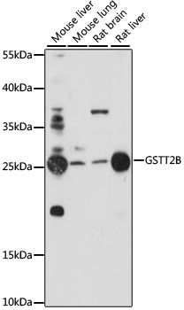 Western blot analysis of extracts of various cell lines lysates using GSTT2B antibody