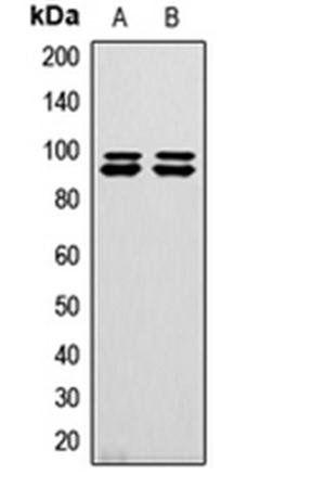 Western blot analysis of HeLa (Lane1), U2OS (Lane2) whole cell using GW antibody