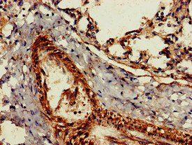 Immunohistochemistry of paraffin-embedded human lung tissue using GZMK antibody