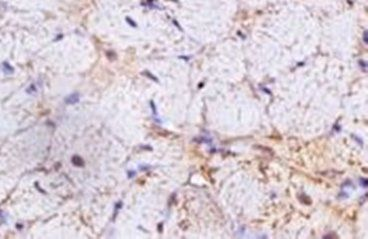 Immunohistochemical analysis of formalin-fixed paraffin embedded rat heart tissue using HCN4 antibody (dilution at 1:200)