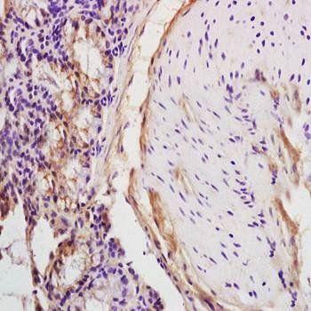 IHC-P of rat colitis tissue (dilution at:1:200) using HCV-NS3 antibody