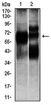 Western blot analysis of L1210 (Lane1), and HL7702 (Lane2) cell lysate using HEXA antibody
