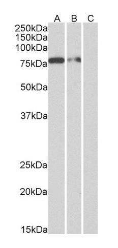 WB analysis of of Multitag protein at 25 ng (A), 10 ng (B) and 5 ng (C) amounts using His tag antibody