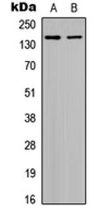 Western blot analysis of HepG2 (Lane1), HeLa (Lane2) whole cell using Histone Deacetylase 6 (phospho-S22) antibody